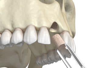 celina jawbone grafting