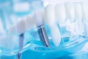 celina dental implants