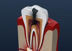 celina sdf cavities