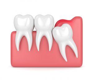 celina wisdom tooth