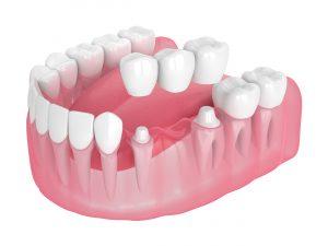 celina dental bridge