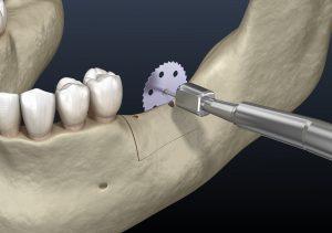 celina bone grafting