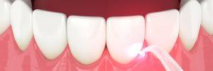celina laser dentistry