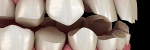celina teeth grinding