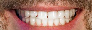 celina dental bonding