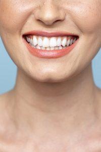 celina teeth whitening