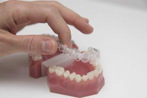 celina clear braces