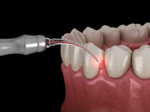 celina laser gum contouring