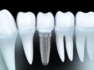 implantprocedure