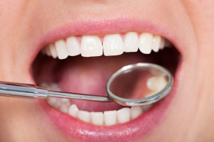 two important benefits of tooth-colored fillings